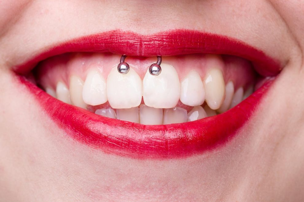 Lippenbändchen-Piercing stechen lassen