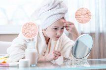 Trockene Haut Ursachen Abhilfe